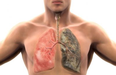 Detecting VEGF tumor markers in blood for early diagnosis of lung cancer